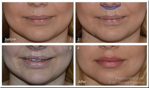 A Lip Lift Can Decrease The Relative Vertical Length Of The Cutaneous Lip Which Elongates As Part Of The Aging Process Dr Lippenvergrosserung Oberlippe Lippen