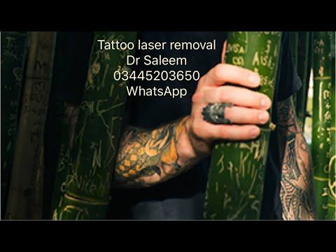 Tattoo Removal By Laser In Pakistan Lahore By Doctor Saleem At
