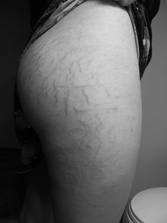 Today I was out walking in short shorts, and I heard some girls whisper as they walked by. 'Ugh, why would she even wear shorts if they are gonna show off her gross stretch marks?' Hearing things like this makes me so angry. Let me clarify that my stretch marks are not gross. They are little stripes on my skin that my loving boyfriend cannot seem to stop kissing or running his fingers over.