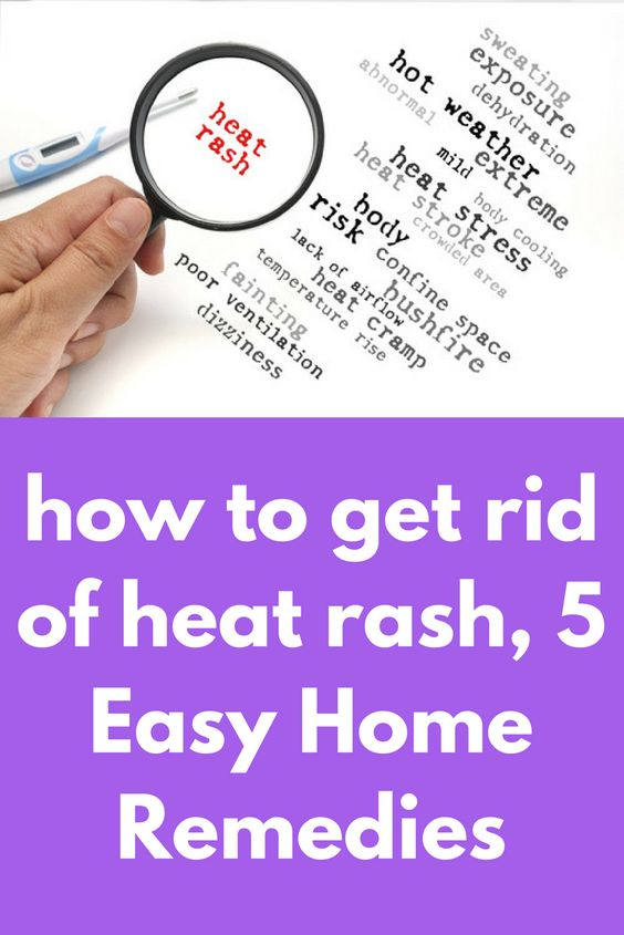 8a9ae00195c7d06859c04cbd2ba2b6a4 - How To Get Rid Of Heat Rash Fast On Adults