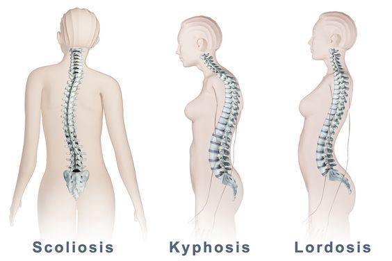 Spinal Deformity Types: Scoliosis, Lordosis, & Kyphosis,