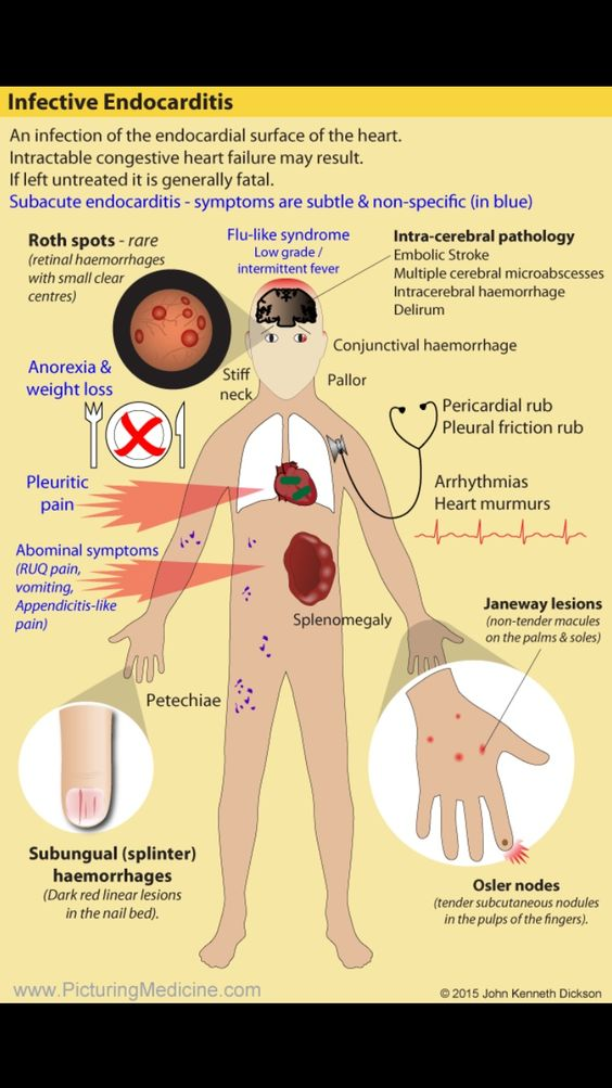 Infective Endocarditis. Can you remember the signs ...