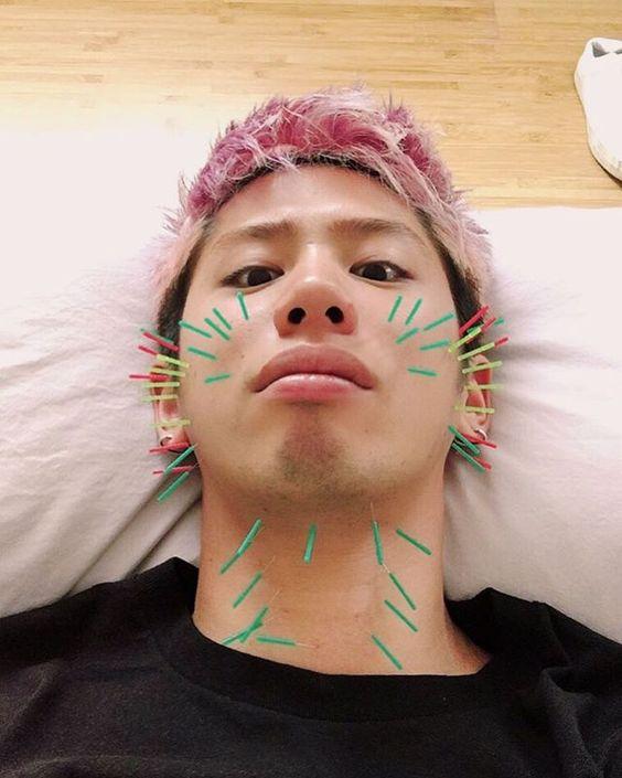 美容鍼を受けるTaka