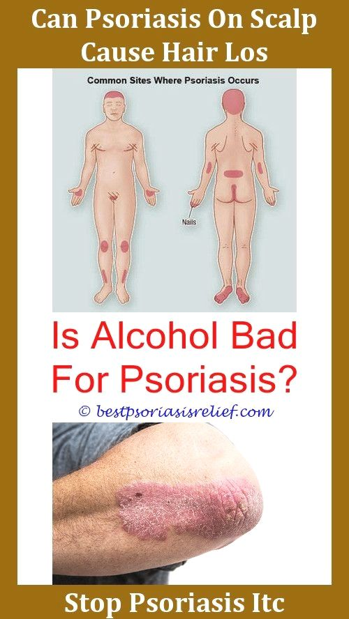 Psoriasisonarms Effects Of Psoriasis Queeslapsoriasis How To Get