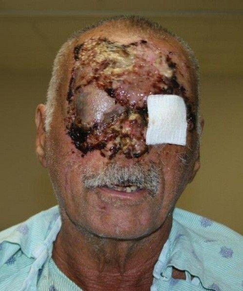 Ronald Poppo, cannibal victim, is a Miami Heat fan