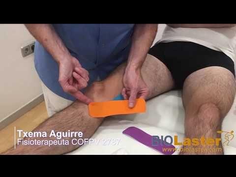 Aplicación De Vendaje Neuromuscular Para La Pata De Ganso Youtube Pata De Ganso Vendaje Neuromuscular Vendaje