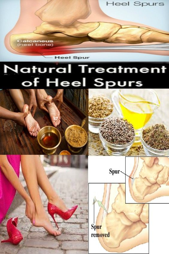 Home Remedies for Heel Spurs and Care