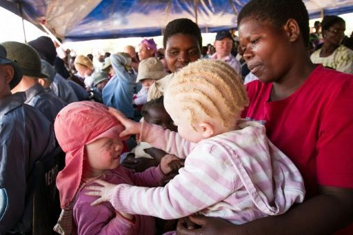 """Seit 2014 sind in Malawi mehr als ein Dutzend Albinos getötet worden: In einem am Dienstag veröffentlichen Bericht der Menschenrechtsgruppe Amnesty International heißt es, Albinos seien in dem südafrikanischen Land einer """"noch nie da gewesenen Welle der Gewalt"""" ausgesetzt. Selbsternannte Medizinmänner"""