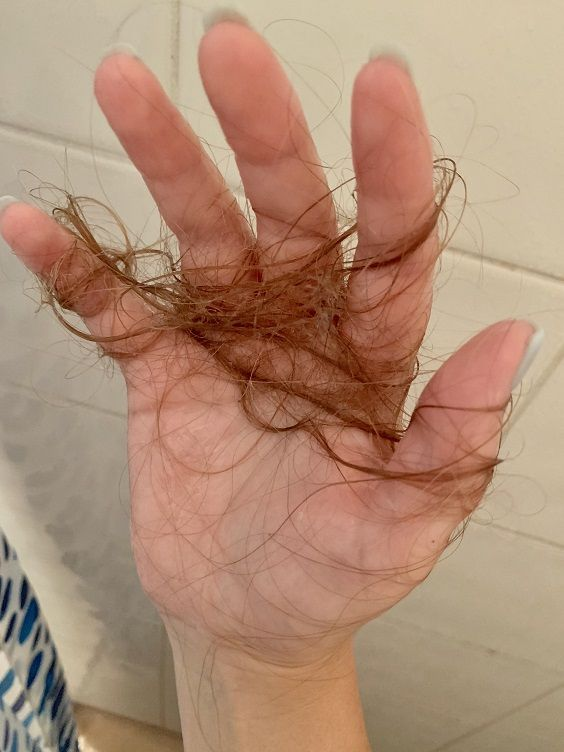 How Much Hair Loss In The Shower Is Normal Des Produits De Soins Capillaires