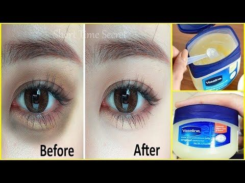 Apply Vaseline On Your Under Eye Dark Circles And See The Magic Remove Dark Circles In Just 3 Days Remove Dark Circles Dark Eye Circles Vaseline Beauty Tips