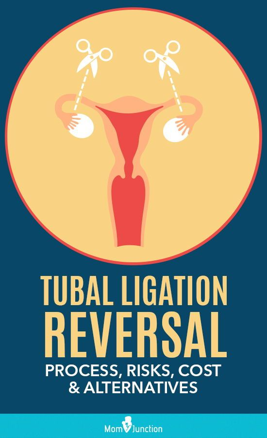 Tubal Ligation Reversal Process Risks Cost And Alternatives If You Are Considering To Get The Tubes Untied Mom Junction Female Infertility Tubal Reversal