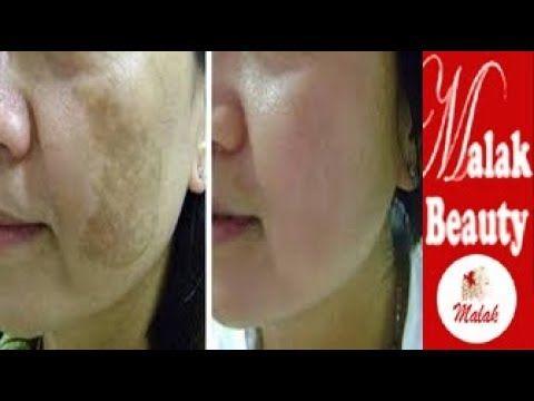 أخيرا أنجح وصفة للازالة الكلف القديم والبقع من الوجه علاج الكلف في الوجه باقل من دقيقة مع ملك Youtube Beauty