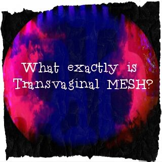 Mesh 101. http://survivingmesh.wordpress.com/2014/03/18/mesh-101/