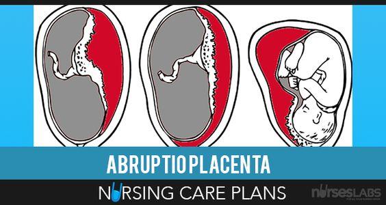 3 Abruptio Placentae Nursing Care Plans Care plans, Nursing care - care plan