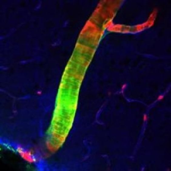 A previously unrecognized system that drains waste from the brain at a rapid clip has been discovered by neuroscientists. The highly organized system acts like a…