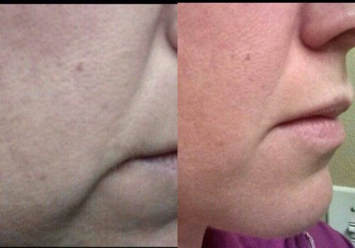 My results after only three weeks of Nerium night cream.  capricescott.nerium.com