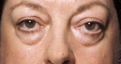 水腫型眼袋,眼霜,眼腫