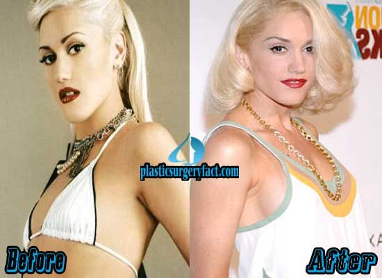 Natrual boob job before and after
