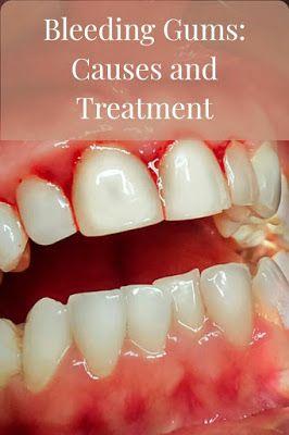 Articles In All Fields نزيف الل ـث ة نزيف اللثة يحدث بسبب العديد من ال Bleeding Gum Gum Bleeding