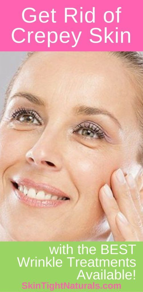 How To Get Rid Of Crepey Skin Around Eyes