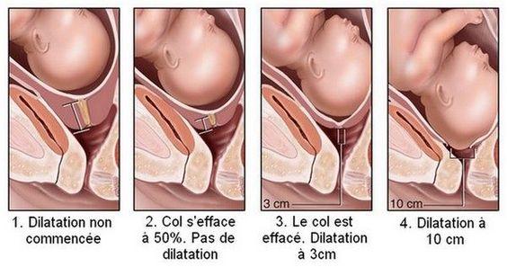 Dilatation col utérus