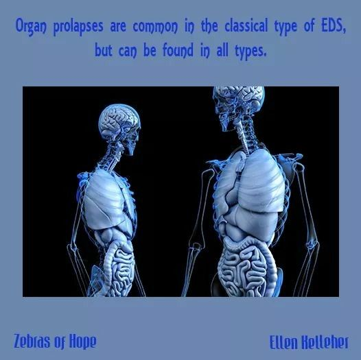 Eds Organ Prolapse Fatty Liver Detox Cleansers Osteoporosis