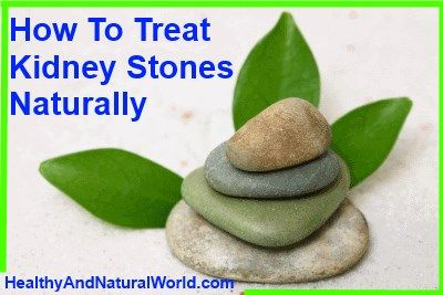 World S Largest Kidney Stone Passed Naturally