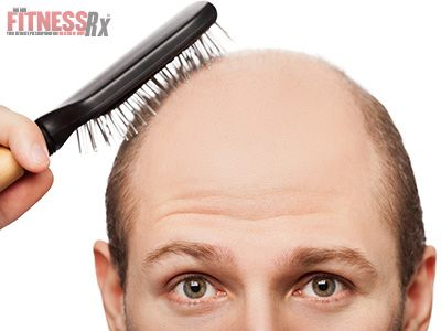 Early Balding - Cuts Prostate Cancer Risk