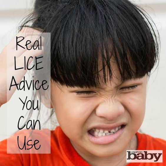 Lice is most common in daycares and elementary schools, because kids tend to jump all over each other during play. Learn how to treat and prevent them. (via Parenting.com) #lice #advice #treatment #americanbaby