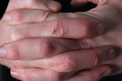 What Causes the Skin to Peel From Fingertips?
