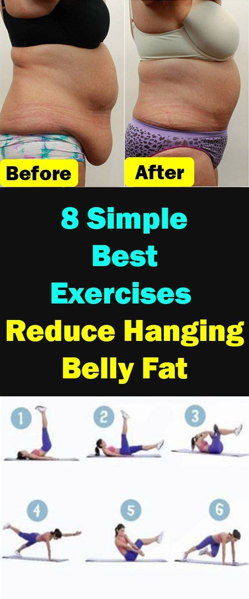 How To Get Rid Of Abdominal Pannus Without Surgery