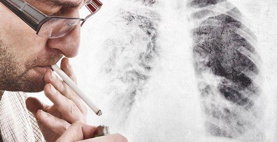 Lungenkrebs bleibt oft lange Zeit unbemerkt, eine Methode zur Früherkennung gibt es nicht. Bestimmte Zellen verändern sich aber schon so früh, sodass ein Lungenkrebs-Schnelltest entartete Zellen erkennen könnte.