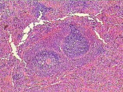 histology spleen | Spleen Histology - Spleen - histology ...