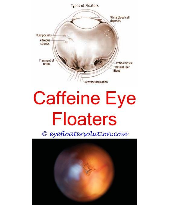 floaters dry eyes