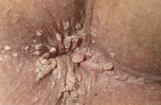 Who can treat anal warts