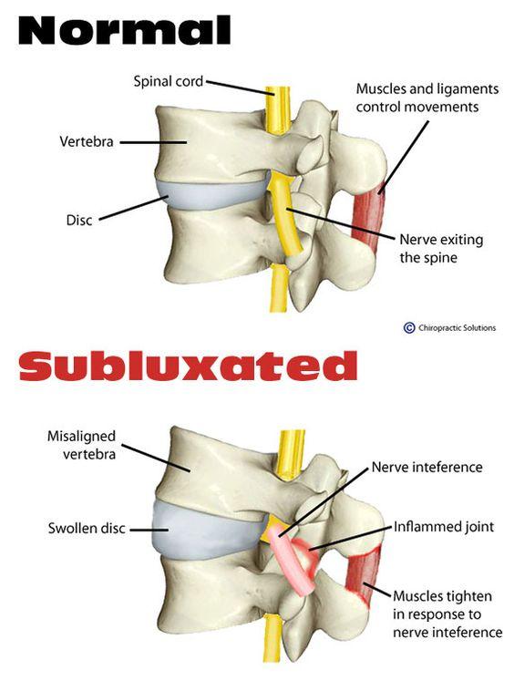 What is a #Chiropractic #Subluxation?  www.sandiegofamilychiropractic.com