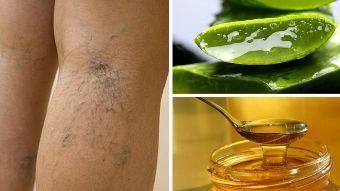 Aloe vera y miel para eliminar las varices