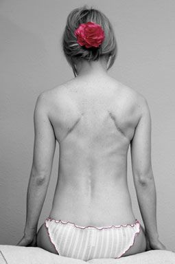 This beautiful picture speaks volumes.   Double lung transplant due to lung damage caused by Cystic Fibrosis. #Scar