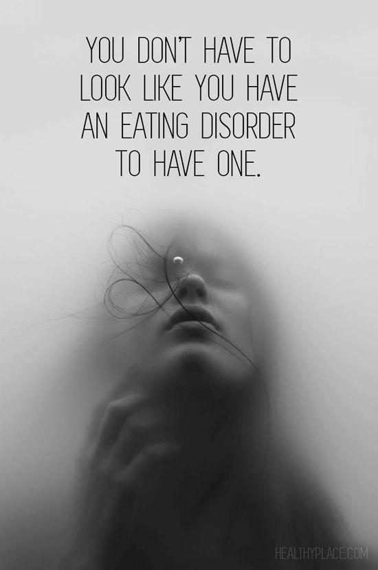 This is important for people to understand because many people with bulimia don't show physical signs and feel very alone because they can't tell anyone. -MD: