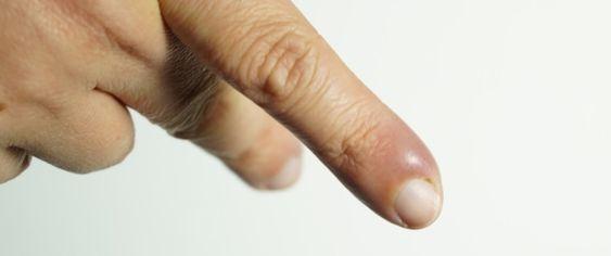 علاج الاصبع المدوحس ومعلومات هامة ويب طب