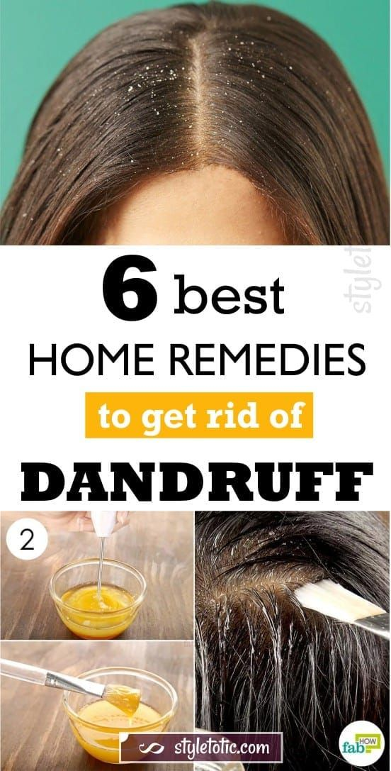 6 Best Home Remedies To Get Rid Of Dandruff For Good Home Remedies For Dandruff Dry Scalp Treatment Dandruff Remedy