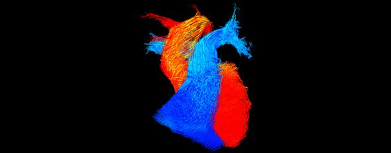 Static image of blood flowing through the heart.