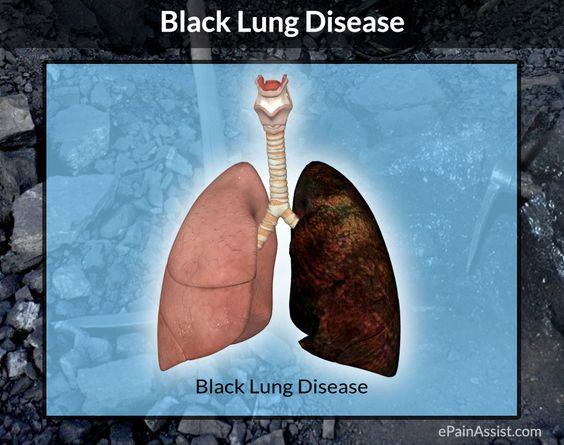 What is Pneumoconiosis or Black Lung Disease
