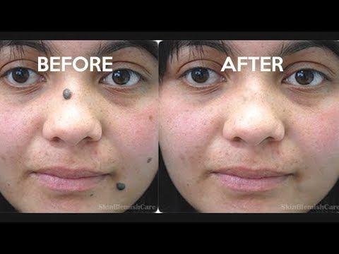 2 Easy Ways To Remove Moles From Your Face How To Get Rid Of Moles Youtube Moles On Face Facial Mole Facial Mole Removal