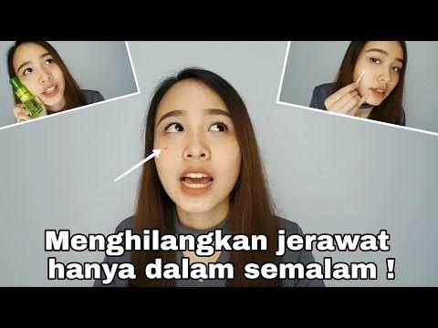 Cara Menghilangkan Jerawat Dalam Satu Malam Ngobrol Soal Jerawat Savira Millenita Youtube Jerawat Youtube Malam