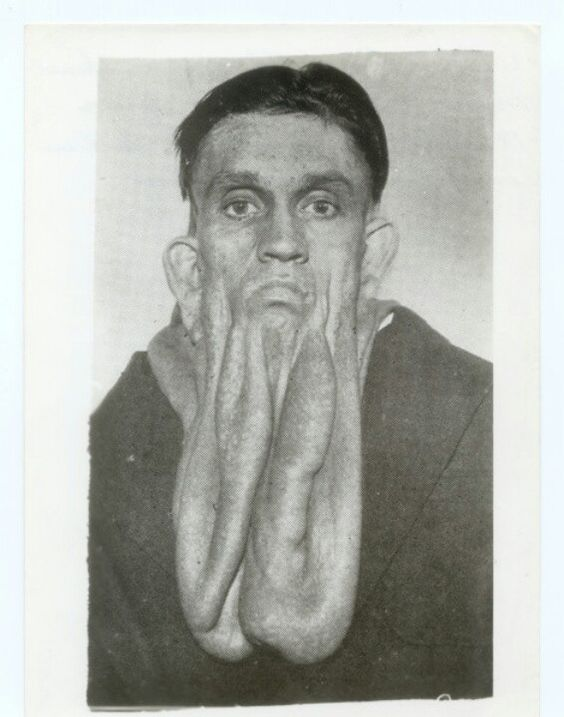 Артър Лоус, гуменият мъж.  Бузите му падат 18 инча.  В Световния панаир в Чикаго вярвате или не се показват.