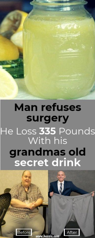 Man refuses surgery, He Loss 335 Pounds With his grandmas old secret drink #weightlossrecipes #weightlossbeforeandafter #weightloss #weightlossfast