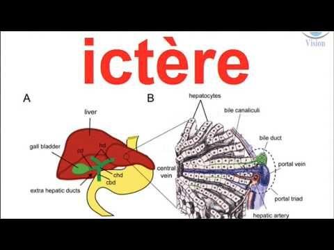 Diagnostique Medical De L Ictere A Bilirubine Conjuguee Et Non Conjuguee Diagnostique Voies Biliaires Medical