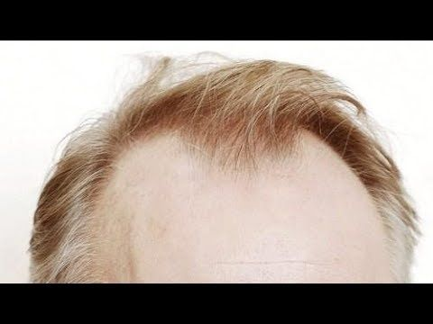 11 Genius Hairstyles To Hide Receding Hairlines Big Foreheads 2019 Styles Haircuts For Balding Men Hairstyles For Receding Hairline Balding Mens Hairstyles
