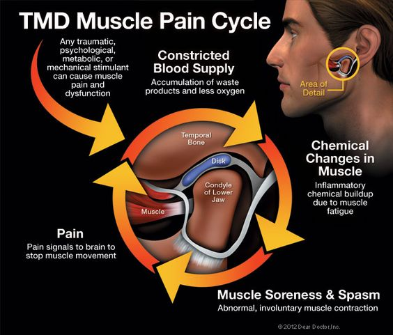 muscle pain d 39 epices and jaw pain on pinterest : tmj pain diagram - findchart.co